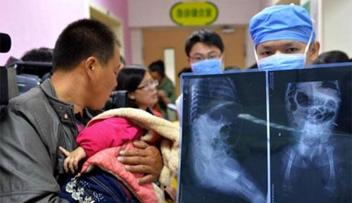TQ: Dì ruột đâm 12 kim tiêm vào cháu gái 11 tháng tuổi - 1